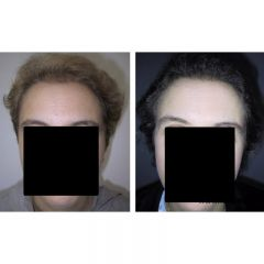 Foto alopecia androgenetica femminile