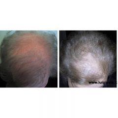 Foto alopecia androgenetica nella donna