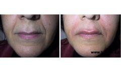 Foto Impianto solchi nasogenieni e labbra superiore